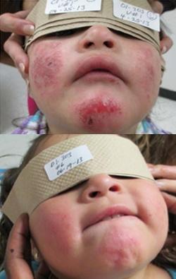 sandalwood eczema treatment